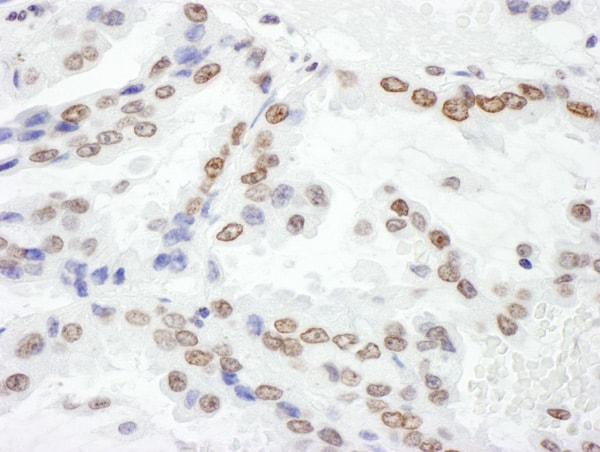 Immunohistochemistry (Formalin/PFA-fixed paraffin-embedded sections) - Anti-Histone H2A.X antibody (ab140498)
