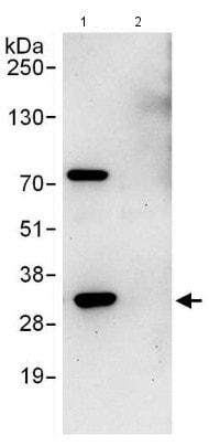 Immunoprecipitation - Anti-Proteasome 20S C2/HC2 antibody (ab140499)