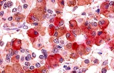 Immunohistochemistry (Formalin/PFA-fixed paraffin-embedded sections) - Anti-AVPR1B antibody - Cytoplasmic domain (ab140500)