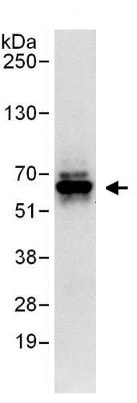 Immunoprecipitation - Anti-RNF25 antibody (ab140514)