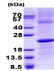 SDS-PAGE - Recombinant Human IGLL1 protein (denatured) (ab140547)