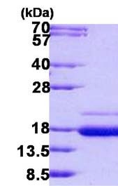 SDS-PAGE - Recombinant Human SSR2 protein (ab140550)