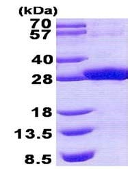 SDS-PAGE - Recombinant Human RDHE2 protein (ab140552)