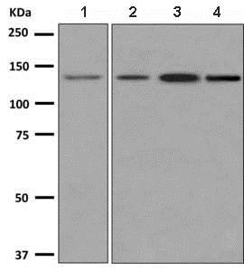 Western blot - Anti-Integrin alpha 9 antibody [EPR9722] (ab140599)