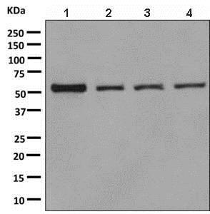 Western blot - Anti-CBS antibody [EPR8579] (ab140600)