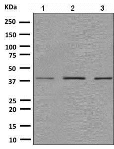 Western blot - Anti-SR protein repeat/SRSF6 antibody [EPR9230] (ab140602)