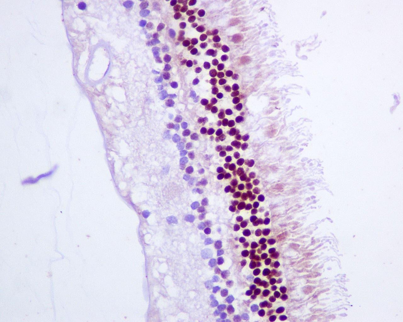 Immunohistochemistry (Formalin/PFA-fixed paraffin-embedded sections) - Anti-CRX antibody [EPR9582] (ab140603)