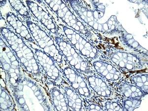 Immunohistochemistry (Formalin/PFA-fixed paraffin-embedded sections) - Anti-HLA-DRB4 antibody [EPR7182] (ab140612)