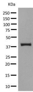 Western blot - Anti-UPB1 antibody [EPR9133(B)] (ab140622)