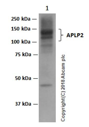 Western blot - Anti-APLP2 antibody [EPR5938(2)] (ab140624)