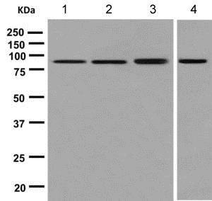 Western blot - Anti-ABLIM1 antibody [EPR9508] (ab140625)