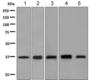 Western blot - Anti-OXGR1/GPR99 antibody [EPR6305(2)] (ab140630)