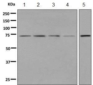 Western blot - Anti-GALNT2 antibody [EPR9605(B)] (ab140637)