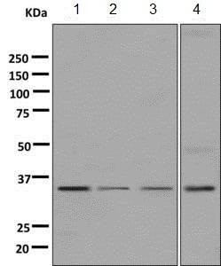 Western blot - Anti-KIR2DS4 antibody [EPR7759] (ab140638)