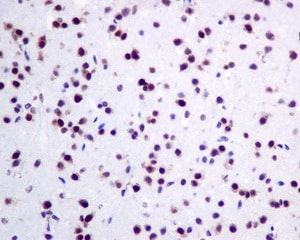 Immunohistochemistry (Formalin/PFA-fixed paraffin-embedded sections) - Anti-KHSRP antibody [EPR9865] (ab140648)