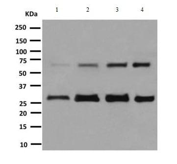 Western blot - Anti-HEXB antibody [EPR7978] (ab140649)