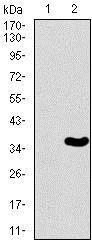 Western blot - Anti-Brachyury / Bry antibody [1H9A2] (ab140661)