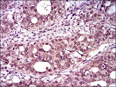 Immunohistochemistry (Formalin/PFA-fixed paraffin-embedded sections) - Anti-Brachyury / Bry antibody [1H9A2] (ab140661)