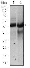 Western blot - Anti-Hyaluronan synthase 2 antibody [4E7] (ab140671)