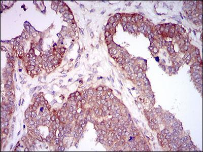 Immunohistochemistry (Formalin/PFA-fixed paraffin-embedded sections) - Anti-Hyaluronan synthase 2 antibody [4E7] (ab140671)