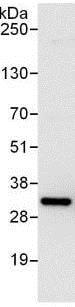 Immunoprecipitation - Anti-RPS3 antibody (ab140676)