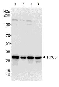 Western blot - Anti-RPS3 antibody (ab140676)