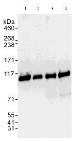 Western blot - Anti-PSMD1 antibody (ab140682)