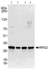 Western blot - Anti-RPS3 antibody (ab140688)