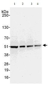 Western blot - Anti-Proteasome 19S S5A/ASF antibody (ab140689)
