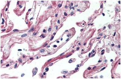 Immunohistochemistry (Formalin/PFA-fixed paraffin-embedded sections) - Anti-Adenosine Receptor A2a antibody - C-terminal (ab140697)