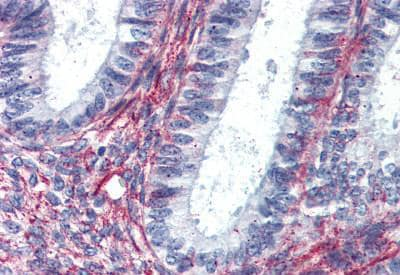 Immunohistochemistry (Formalin/PFA-fixed paraffin-embedded sections) - Anti-Angiotensin II Type 2 Receptor antibody (ab140704)
