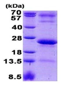 SDS-PAGE - Recombinant Human IGJ protein (ab140727)