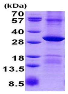SDS-PAGE - Recombinant Human RPP29 protein (denatured) (ab140731)
