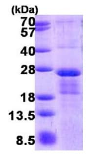SDS-PAGE - Recombinant Human MRI protein (ab140733)