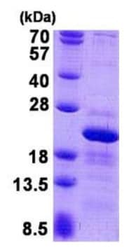 SDS-PAGE - Recombinant Human RPS10 protein (ab140736)