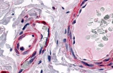 Immunohistochemistry (Formalin/PFA-fixed paraffin-embedded sections) - Anti-CRLR antibody - N-terminal (ab140773)