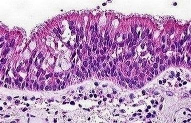 Immunohistochemistry (Formalin/PFA-fixed paraffin-embedded sections) - Anti-C3a R antibody (ab140777)