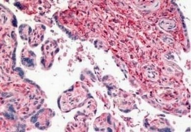 Immunohistochemistry (Formalin/PFA-fixed paraffin-embedded sections) - Anti-CD26 antibody (ab140780)