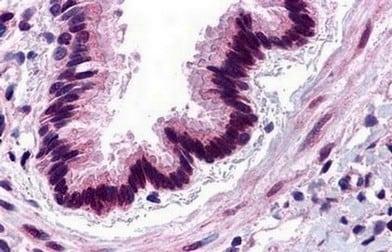 Immunohistochemistry (Formalin/PFA-fixed paraffin-embedded sections) - Anti-C3a R antibody (ab140788)