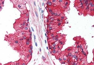 Immunohistochemistry (Formalin/PFA-fixed paraffin-embedded sections) - Anti-CD38 antibody (ab140799)