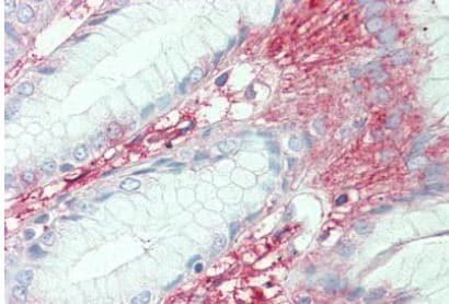 Immunohistochemistry (Formalin/PFA-fixed paraffin-embedded sections) - Anti-SLC7A2/CAT2 antibody (ab140831)