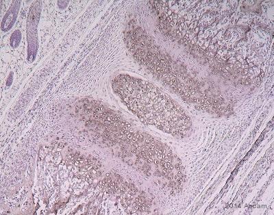 Immunohistochemistry (Formalin/PFA-fixed paraffin-embedded sections) - Anti-LOXL2 antibody (ab140833)
