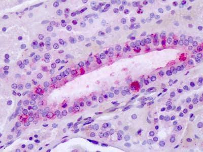Immunohistochemistry (Formalin/PFA-fixed paraffin-embedded sections) - Anti-LPHN3 antibody - C-terminal (ab140843)