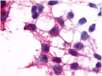 Immunocytochemistry - Anti-P2Y12 antibody - N-terminal (ab140862)