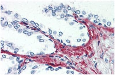 Immunohistochemistry (Formalin/PFA-fixed paraffin-embedded sections) - Anti-P2X3 antibody - C-terminal (ab140870)