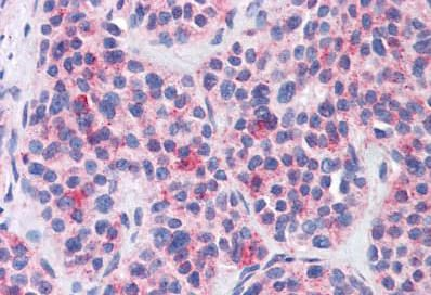Immunohistochemistry (Formalin/PFA-fixed paraffin-embedded sections) - Anti-MBOAT4 antibody (ab140889)