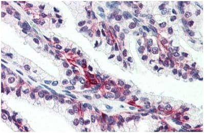 Immunohistochemistry (Formalin/PFA-fixed paraffin-embedded sections) - Anti-SLC39A6/ZIP-6 antibody (ab140928)