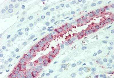 Immunohistochemistry (Formalin/PFA-fixed paraffin-embedded sections) - Anti-AE2 antibody - N-terminal (ab140953)
