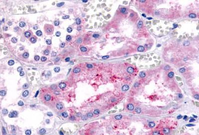 Immunohistochemistry (Formalin/PFA-fixed paraffin-embedded sections) - Anti-Prostaglandin E Receptor EP1/PTGER1 antibody (ab140987)