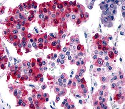 Immunohistochemistry (Formalin/PFA-fixed paraffin-embedded sections) - Anti-SSTR4 antibody (ab140995)